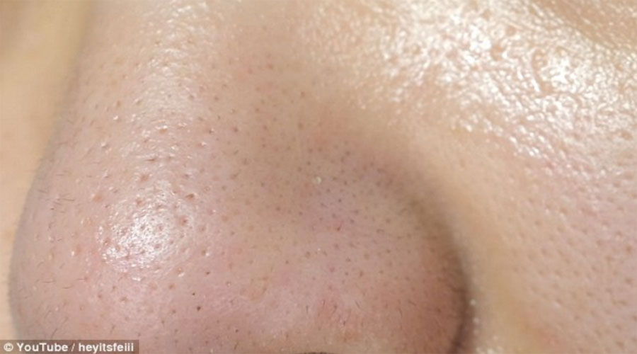 sebaceous filaments vs blackheads