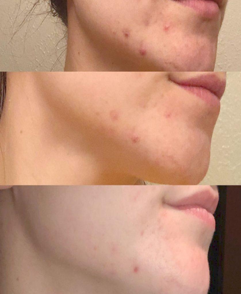 vapor rub for acne