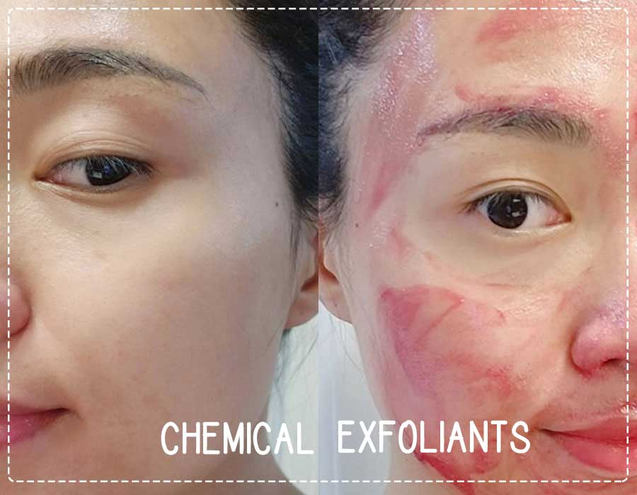 Chemical Exfoliants